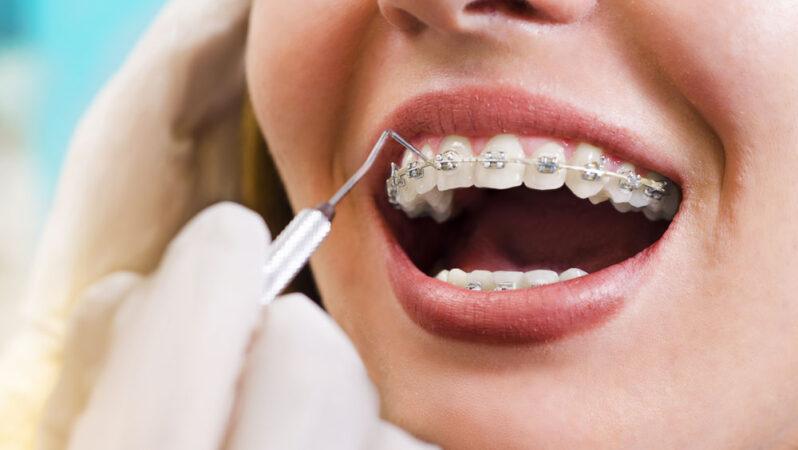 Ortodontist Nasıl Olunur? Ortodontist Maaşları Ne Kadar?